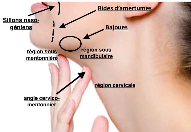 Joues, sillons naso-geniens, bajoues, rides d'amertumes, fanons du cou: les zones anatomiques pouvant être traitées par un lifting cervico-facial