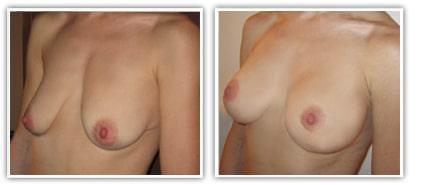 Augmentation du volume des seins par prothèses mammaires de 260cc avec correction de ptôse