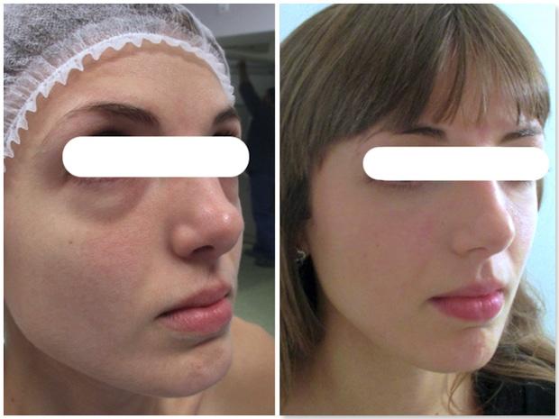 Poches graisseuses sous les yeux traitées par blépharoplastie inférieure