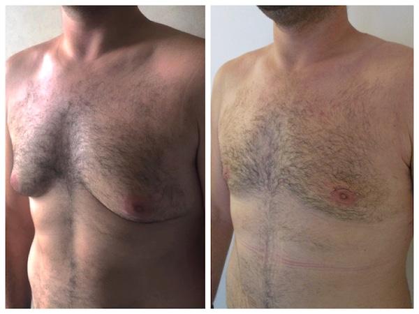 Cicatrice de gynécomastie: le retrait d'un croissant cutané supérieur à permis de remonter l'aréole et de corriger l'excédent cutané
