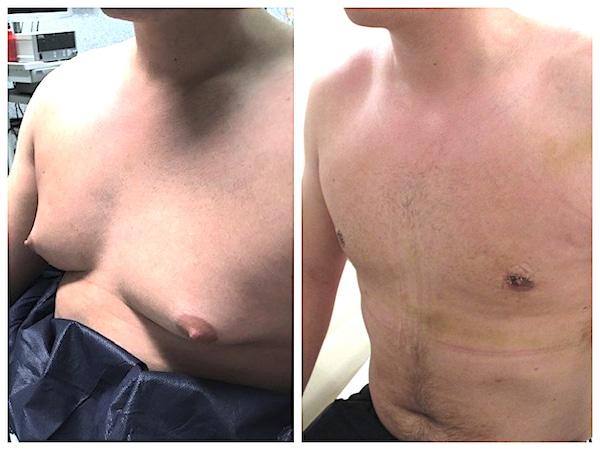Cicatrice aréolaire après le traitement d'une adipo-gynecomastie
