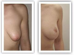 Malformation mammaire du type seins tubéreux