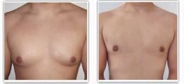 Traitement par cicatrice péri-aréolaire inférieure avec liposuccion (cicatrice axillaire)