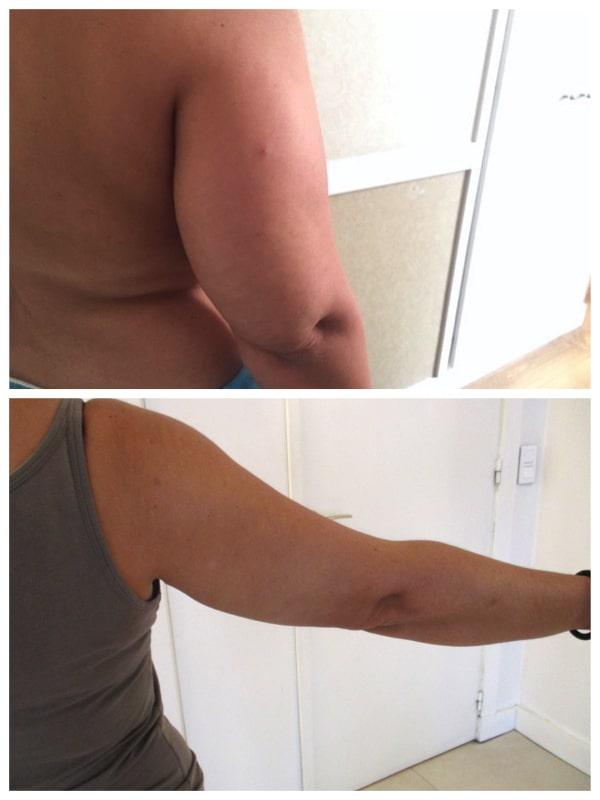 liposuccion de la face postérieure du bras