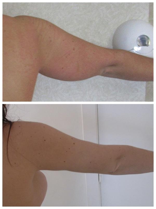 liposuccion-bras-rectraction-ctanée