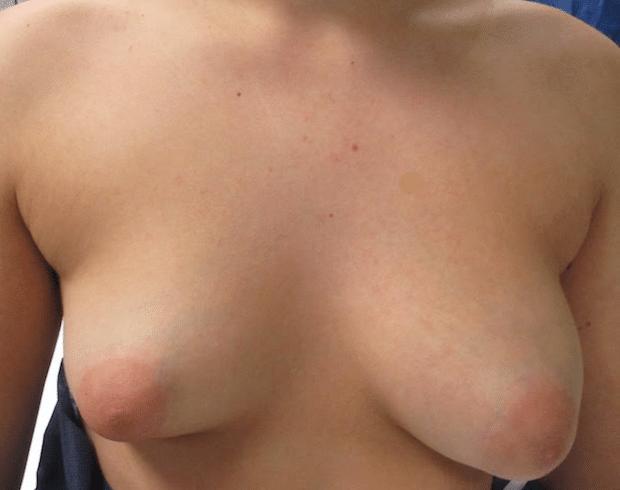 Malformation des seins tubéreux avec asymétrie mammaire