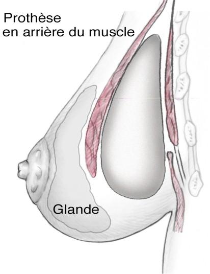prothese mammaire en arrière du muscle (position retro-musculaire)