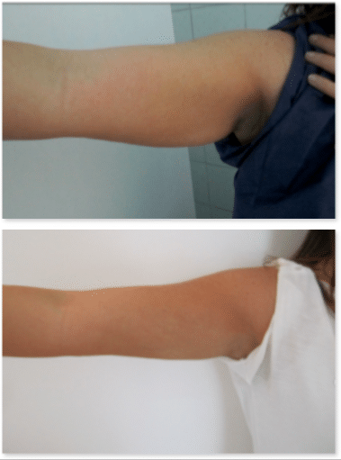 résultat lipoaspiration des bras