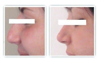 Chirurgie plastique du nez dont la correction a porté sur la bosse et la pointe du nez
