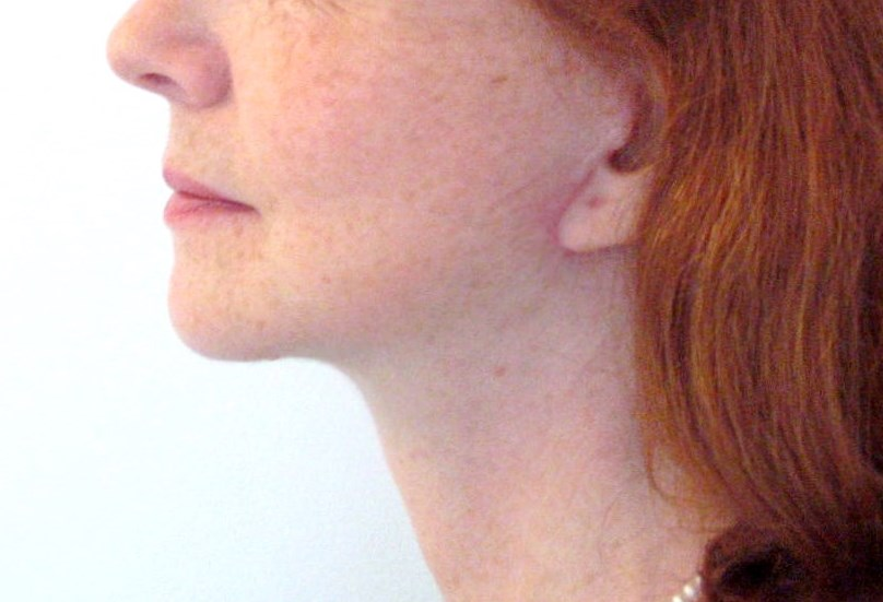 Cicatrice lifting visage cervico facial