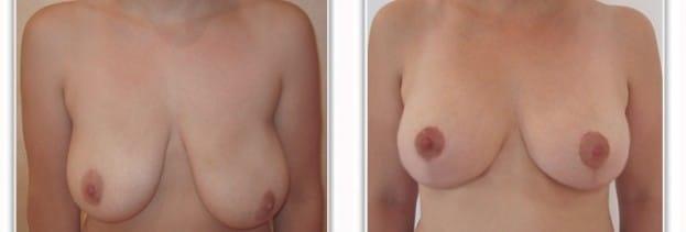 Asymetrie des seins