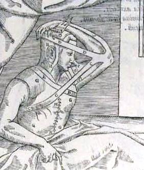 Histoire de la chirurgie esthetique procédé de Tagliacozzi