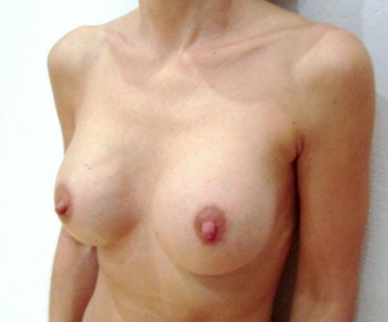 Plis et vagues à la partie supérieure des seins indiquant le changement des prothèses en sérum pour des implants en silicone en gel cohésif