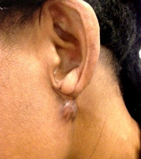 Recidive cicatrice chéloide sur oreille percée
