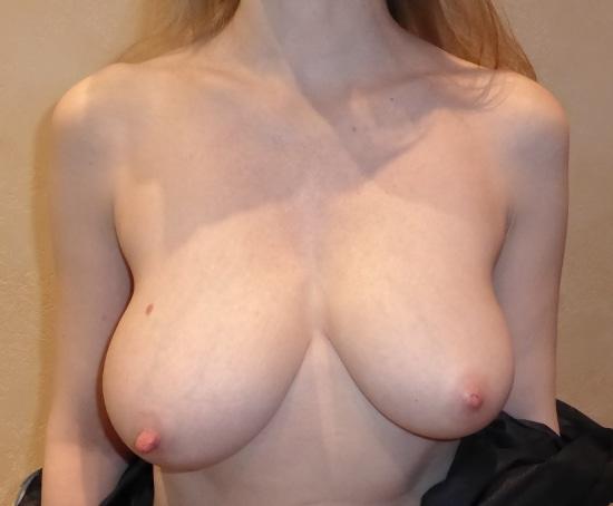Seins de tailles différentes avec hypertrophie du sein droit responsable d'une asymétrie