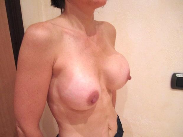 Patiente venant pour une coque stade 3 sur implant du sein gauche