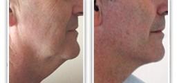 Résultat de lifting cervico-facial chez un homme