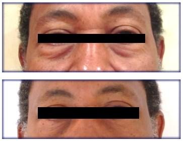 Blépharoplastie inférieure par voie conjonctivale