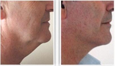 Chirurgie du double menton chez un homme