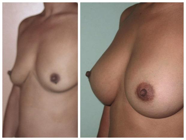 Résultat naturel avant après d'une augmentation mammaires par implants ronds 330cc disposés en Dual Plan