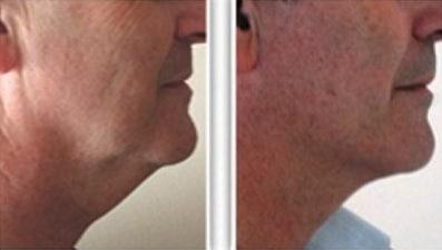 Résultat de lifting du cou chez un homme