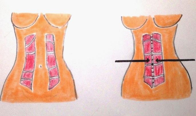 Le diastasis est corrigé par une abdominoplastie