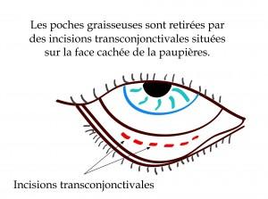 La blépharoplastie inférieure par abord conjonctival permet l'extraction des poches de graisse sans cicatrices visibles.