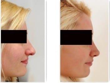 Résultat de rhinoplastie naturelle chez une femme