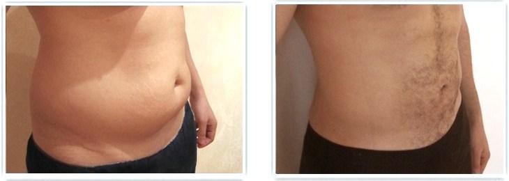 Résultat d'une liposuccion seule du ventre chez un homme compte tenu d'une bonne qualité cutanée