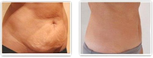 Chirurgie réparatrice abdominale réalisée un an après l'accouchement