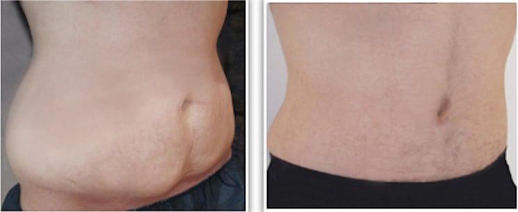 resultat-intervention-apres-amaigrissement-chirurgie-obesite