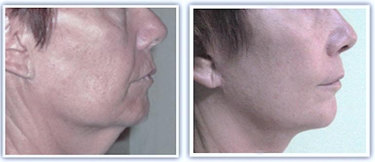 Exceptionnel Quelles sont les causes du double menton ? BT09