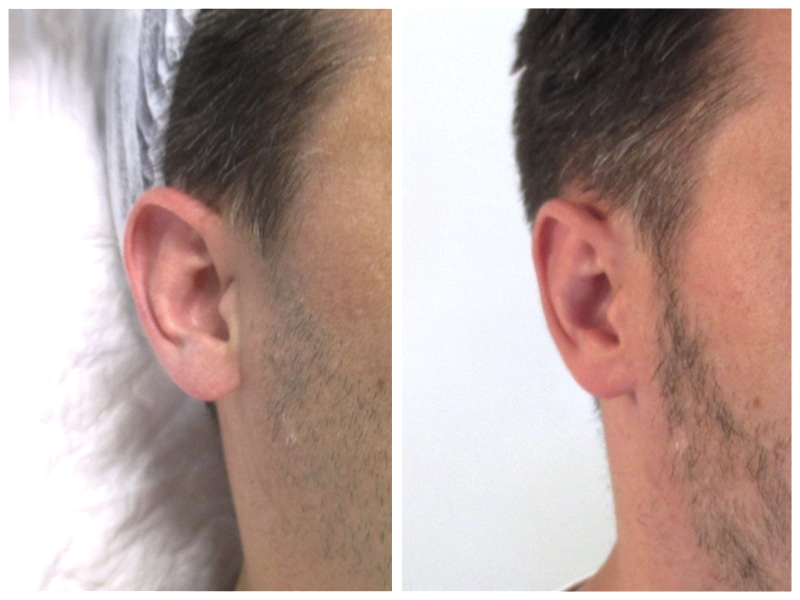 résultat d'un recollement des oreilles