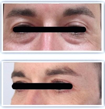 resultat-blepharoplastie-sans-cicatrice