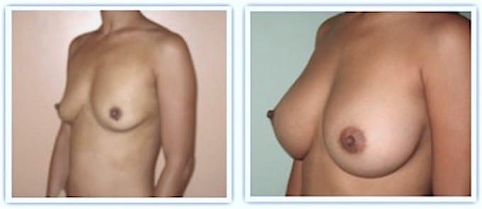 augmentation-mammaire-sous-muscle-dual-plan