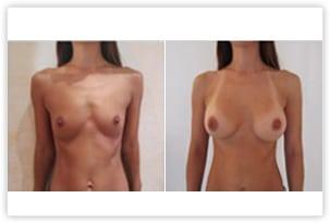 Augmentation mammaire avec prothèses de 280cc