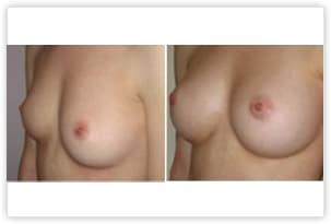 Augmentation mammaire avant/après