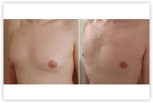 Gynécomastie glandulaire et graisseuse avant après