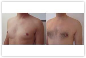 Gynécomastie mixte chez un homme de 24 ans