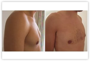 Hypertrophie de la poitrine chez un homme de 28 ans traitée par liposuccion et retrait de la glande