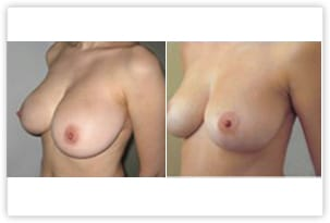 Réduction du volume de la poitrine avant/après