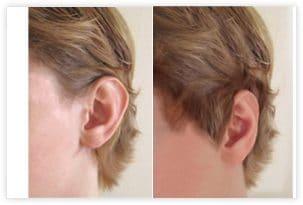 Opération des oreilles décollées