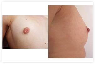 Chirurgie des mamelons invaginés