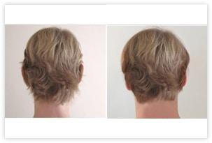 Résultat recollement des oreilles par otoplastie