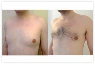 Traitement bilatéral de la poitrine chez un homme