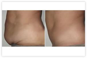 Abdominoplastie avant/après