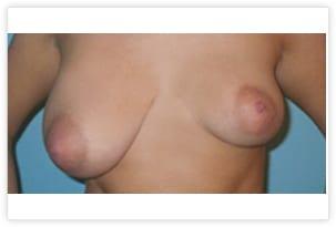 Asymétrie mammaire en raison d'une hypertrophie unilatérale droite