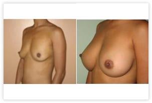 Augmentation mammaire par prothèses mammaires avant/après