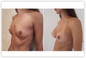 Augmentation mammaire avec implants de 280cc