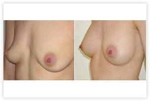 Augmentation mammaire prise en charge par la Sécurité Sociale pour malformation du thorax (en entonnoir)